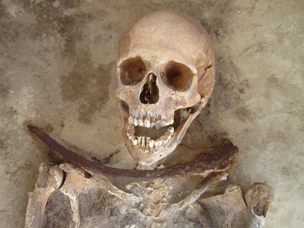Esqueleto de mulher de 30 a 39 anos enterrada com foice na garganta. (Foto: Gregoricka LA, Betsinger TK, Scott AB, Polcyn M/Plos One)